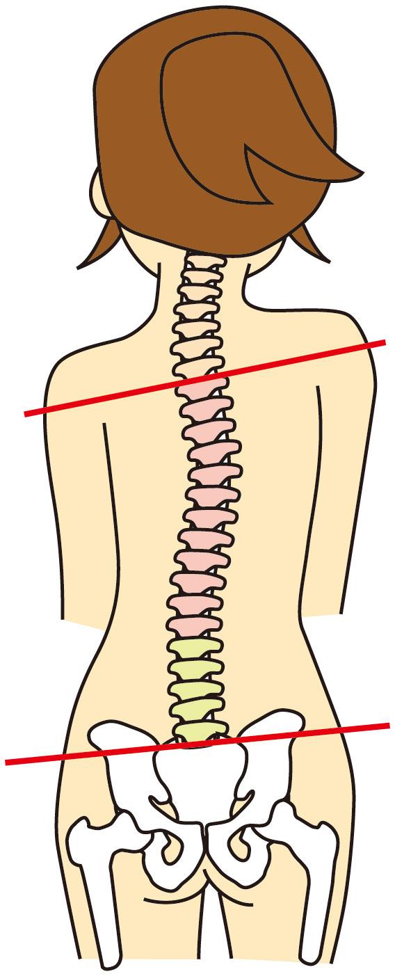 背骨の歪みは耳鳴りの原因になります。