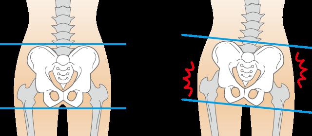 体の歪みが腰痛につながります。