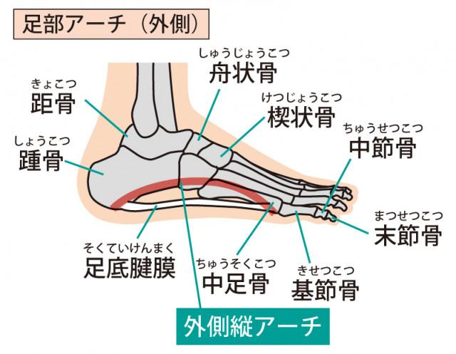 足底筋膜炎とは?