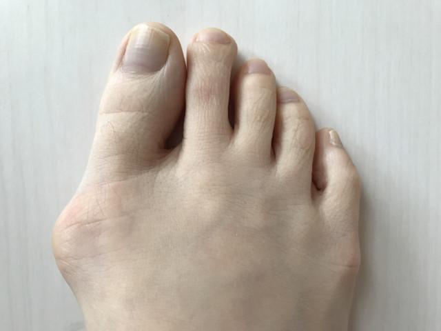 外反母趾の原因とは?