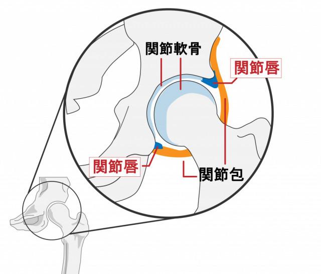 変形性股関節症の原因とは?